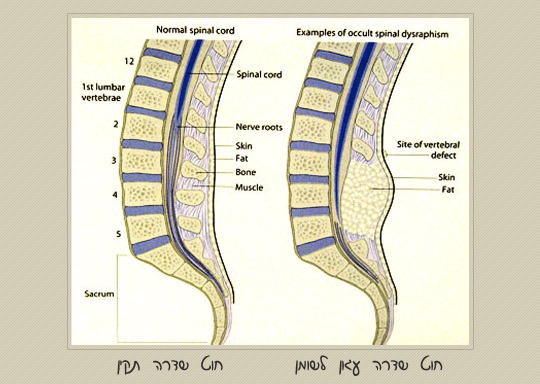 עגינת-חוט-שדרה